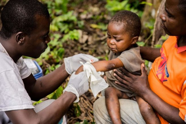 """A child affected by monkeypox, sits on his father's legs while receiving treatment at the centre of the International medical NGO Doctors Without Borders (Medecins sans frontieres - MSF), in Zomea Kaka, in the Lobaya region, in the Central African Republic on October 18, 2018. - Monkeypox is a contagious disease, without remedy, which heals itself, but who can kill if not treated in time. Since May 2018, the monkeypox virus, which spreads in tropical Africa, has become a """"public health threat"""" in the Central African Republic, according to the Pasteur Institute of Bangui. (Photo by CHARLES BOUESSEL / AFP) (Photo credit should read CHARLES BOUESSEL/AFP via Getty Images)"""