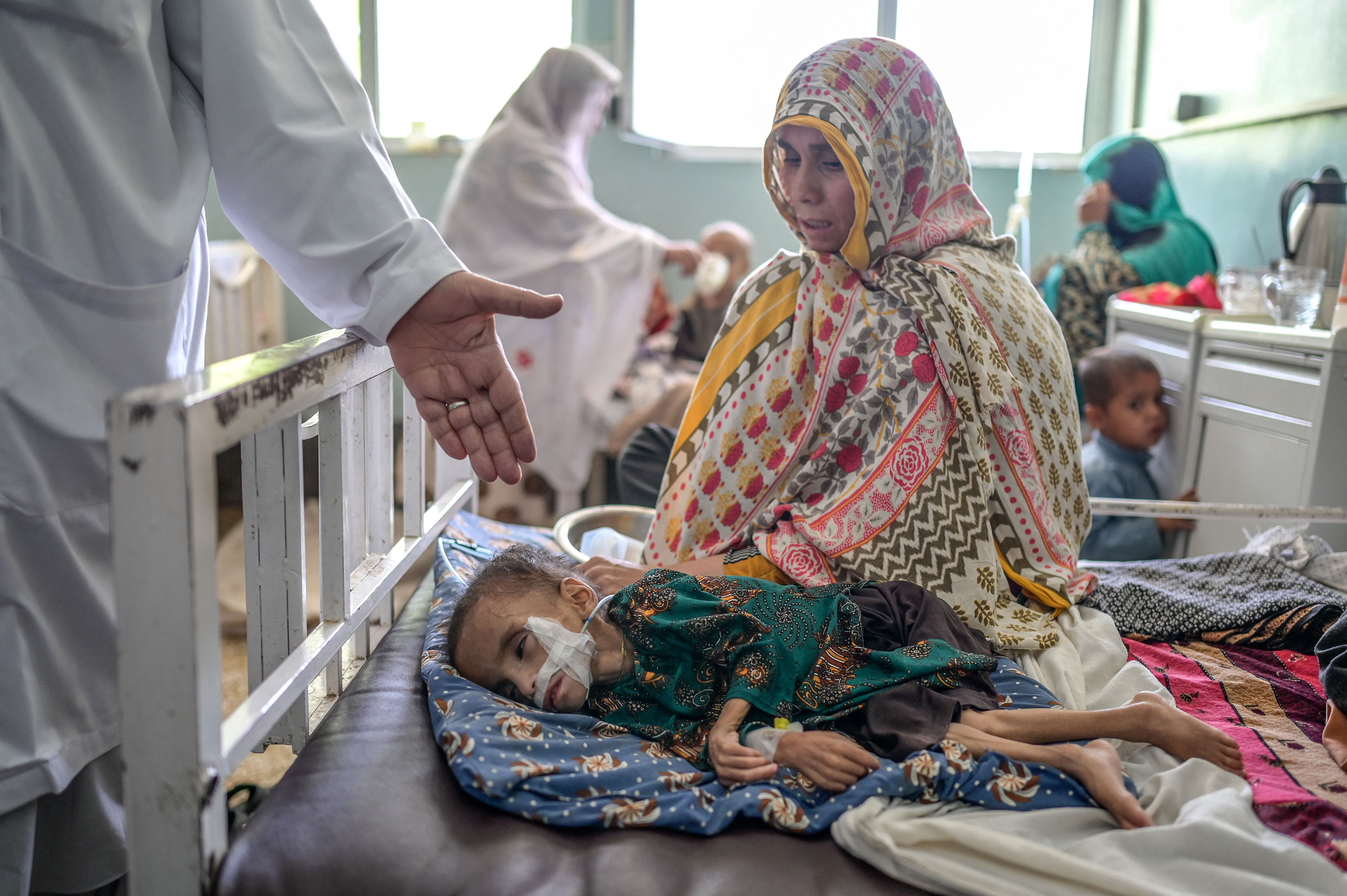A child suffering from malnutrition receives treatment at the Mirwais hospital in Kandahar on September 27, 2021. - (Photo by BULENT KILIC/AFP via Getty Images)